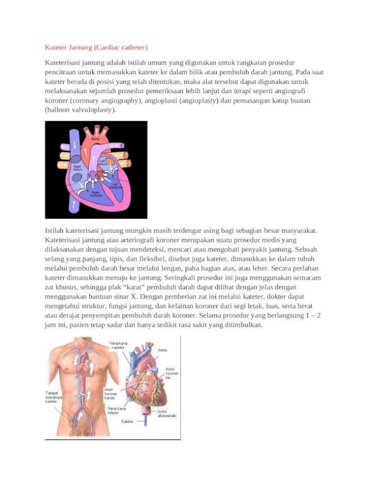 Alkes Kateter Jantung Docx Document